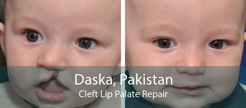 Daska, Pakistan Cleft Lip Palate Repair