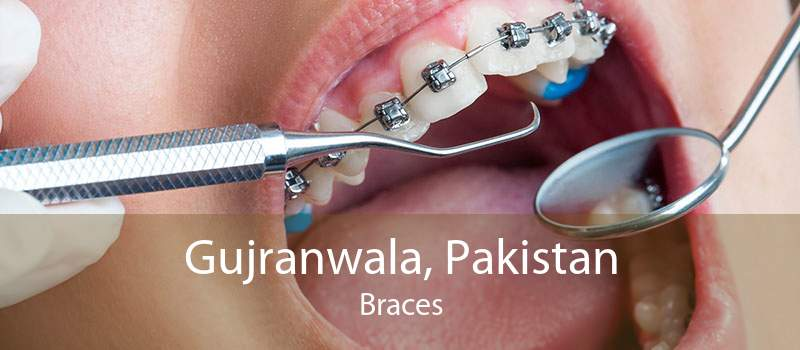 Gujranwala, Pakistan Braces