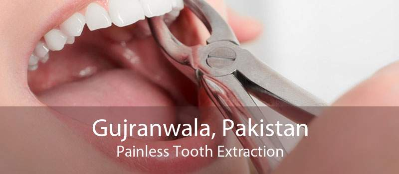 Gujranwala, Pakistan Painless Tooth Extraction