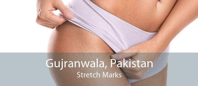 Gujranwala, Pakistan Stretch Marks