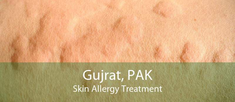 Gujrat, PAK Skin Allergy Treatment