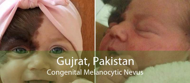 Gujrat, Pakistan Congenital Melanocytic Nevus