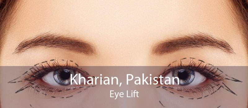 Kharian, Pakistan Eye Lift