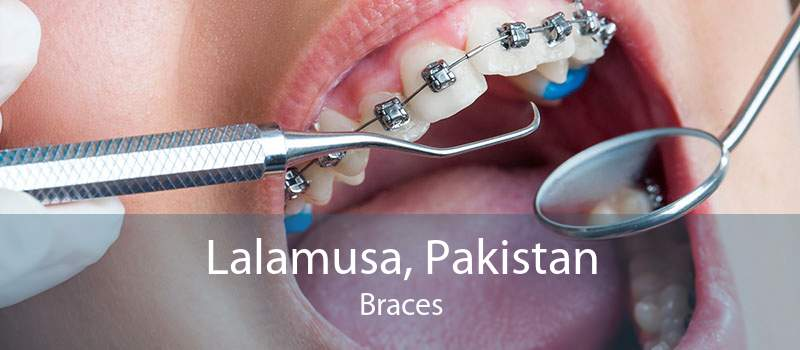 Lalamusa, Pakistan Braces