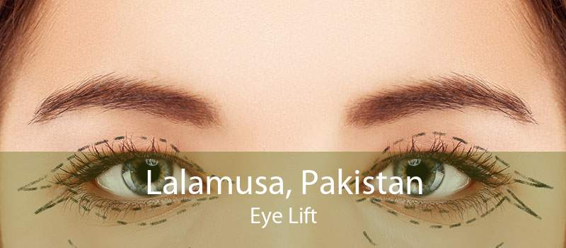 Lalamusa, Pakistan Eye Lift