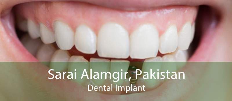 Sarai Alamgir, Pakistan Dental Implant