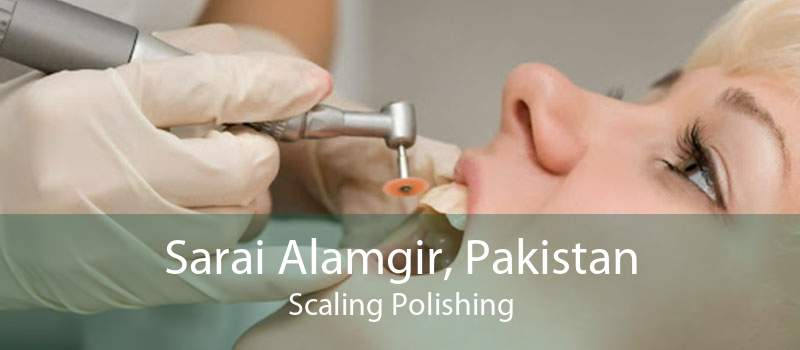 Sarai Alamgir, Pakistan Scaling Polishing