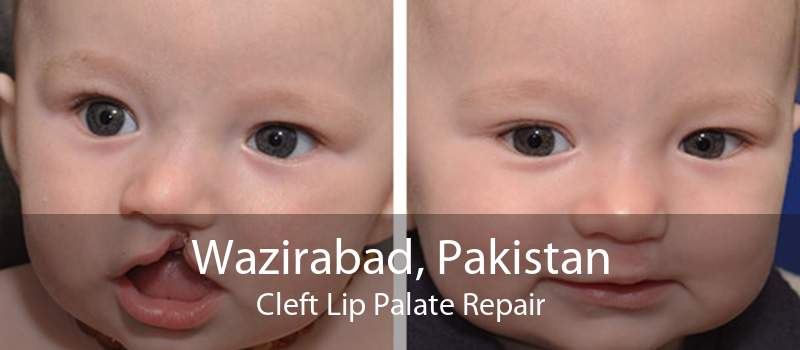Wazirabad, Pakistan Cleft Lip Palate Repair
