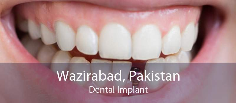 Wazirabad, Pakistan Dental Implant
