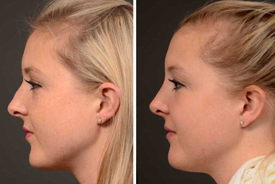 rhinoplasty-surgery